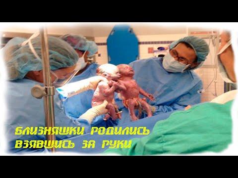 МИНУТКА УДИВИТЕЛЬНОГО Малыши родились взявшись за руки