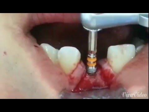 Neo Biotech Dental Implant