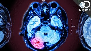 How Repeated Concussions Damage Your Brain Forever