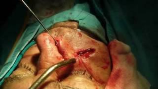 Maksilofacijalna hirurgija 028