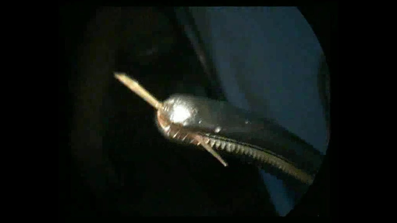 Photo of Tận mắt xem gắp xương cá nội soi – Hóc xương xin đừng dùng mẹo