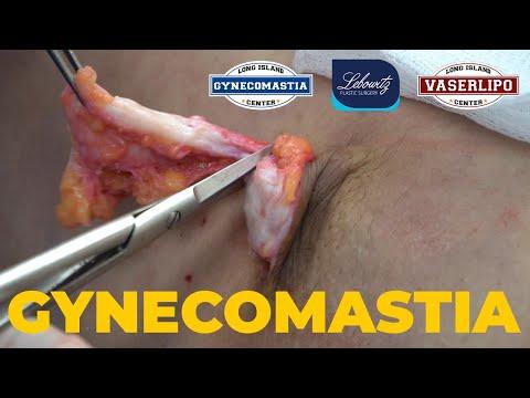 gynecomastia-surgery:-gland-removal,-vaser-liposculpture,-renuvion-&-lipo-filling