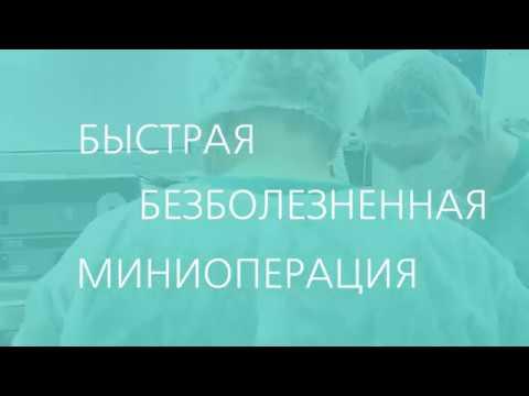 Видео как удаляют полипы в матке