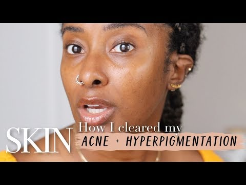 How To Get Rid of Acne Scars + Hyperpigmentation In 1 Month