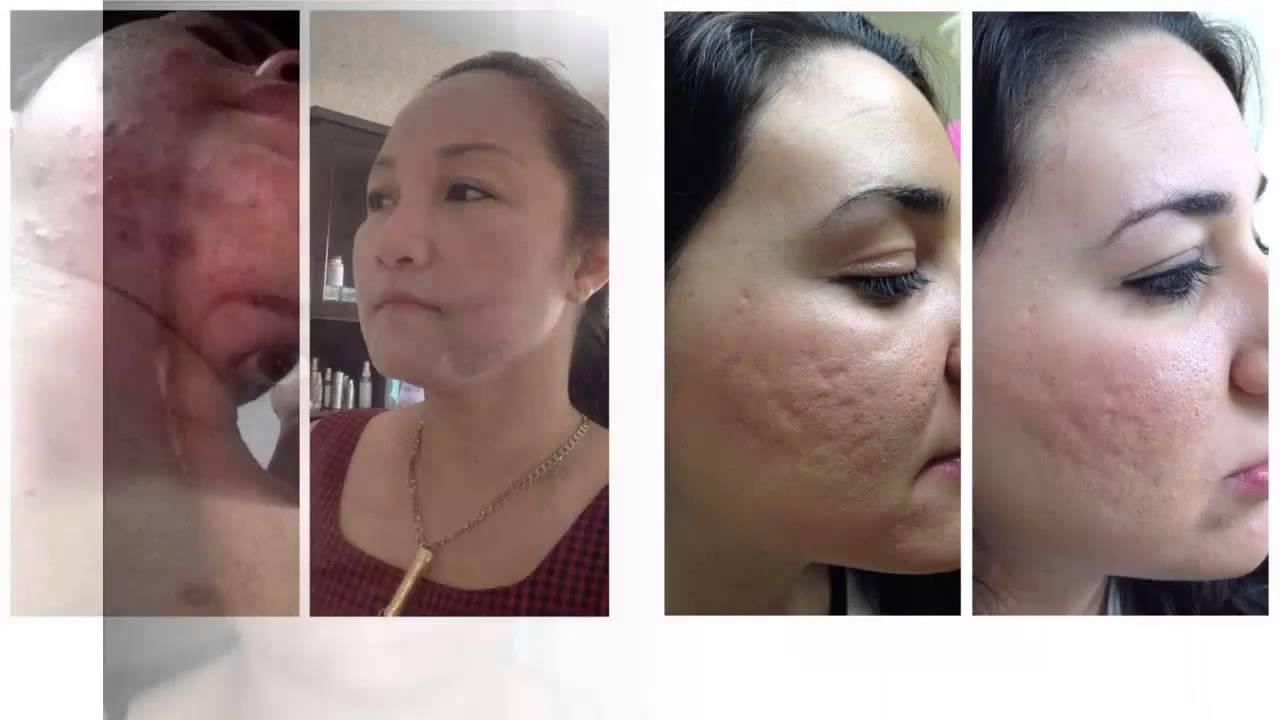serum para las manchas de acne