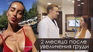 Увеличение груди: история Эллы