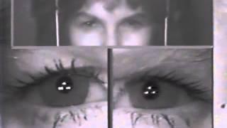 Spasmus Nutans - Danny Eye Fluttering.