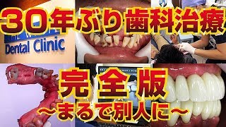 30年ぶりの歯科治療【完全版】~まるで別人に~ dentalclinic 虫歯治療総集編(時隔30年的齒科治療)