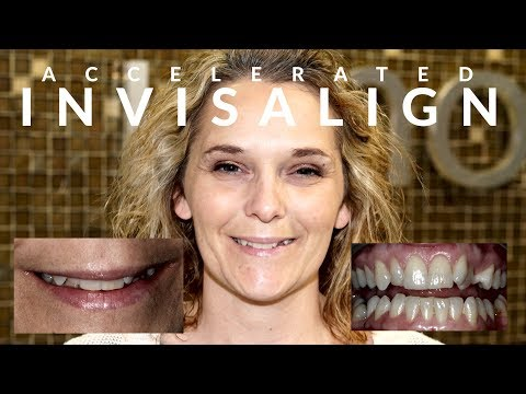The Biggest Problem With Does Aetna Cover Invisalign, And How You Can Fix It hqdefault