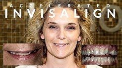INVISALIGN Cross-bite - AMAZING Accelerated Smile Makeover in 7 MONTHS - EP 04
