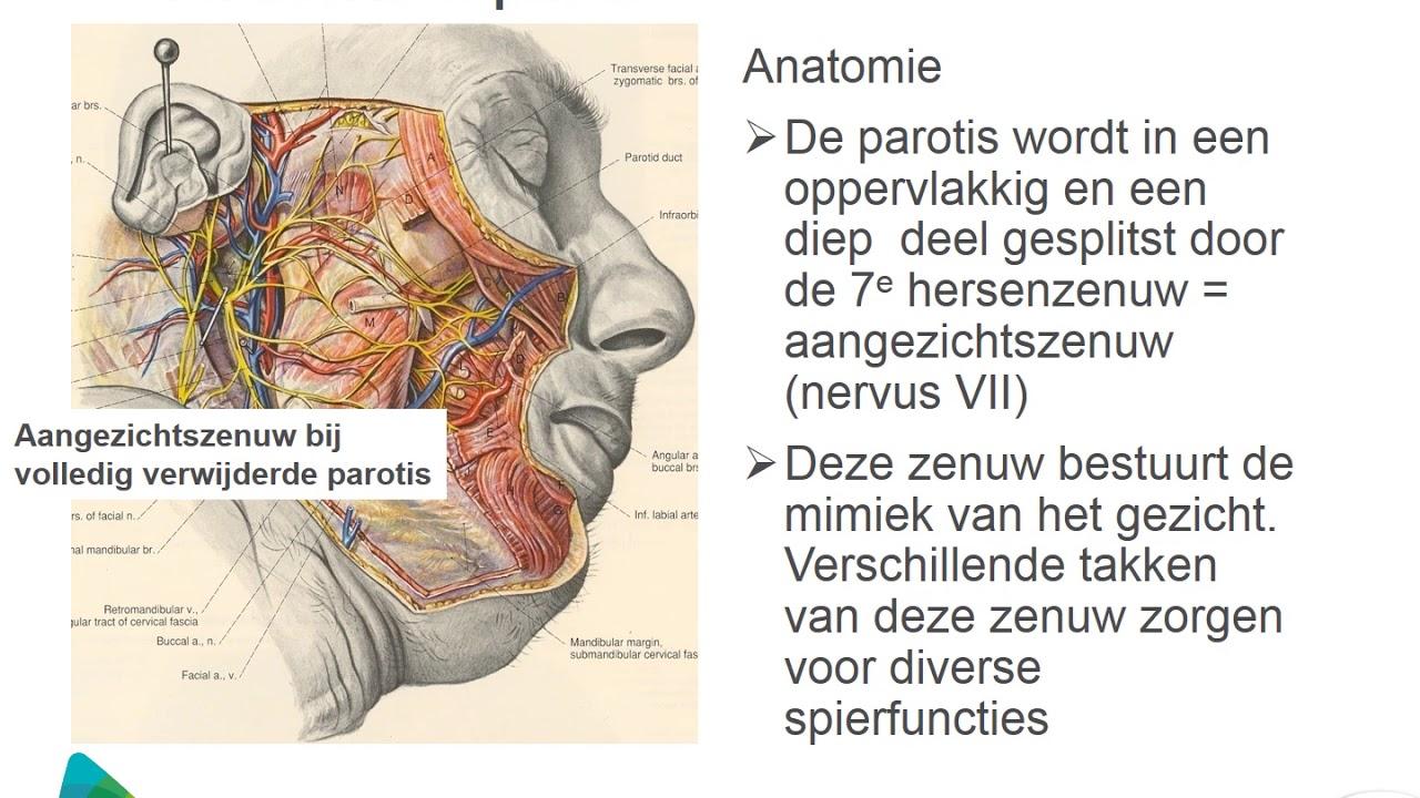 Gezwel in de parotis (voor oorspeekselklier) - YouTube