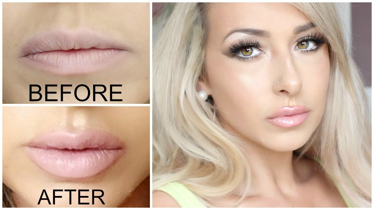 GETTING LIP INJECTIONS!! Juvederm (lip injections) before and after