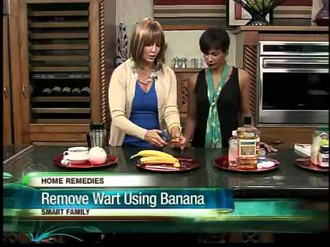 Use a banana peel to remove warts? Surprising home remedies