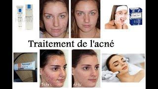 Les traitements médicaux de l'acné