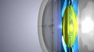 What is myopia (or nearsightedness), astigmatism, and how can Orthokeratology help?