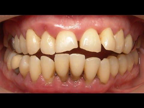 Treatment of Advanced Gum/Periodontal Disease. - YouTube  Treatment of Ad...