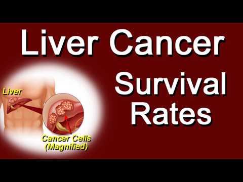 Liver Cancer Survival Rates