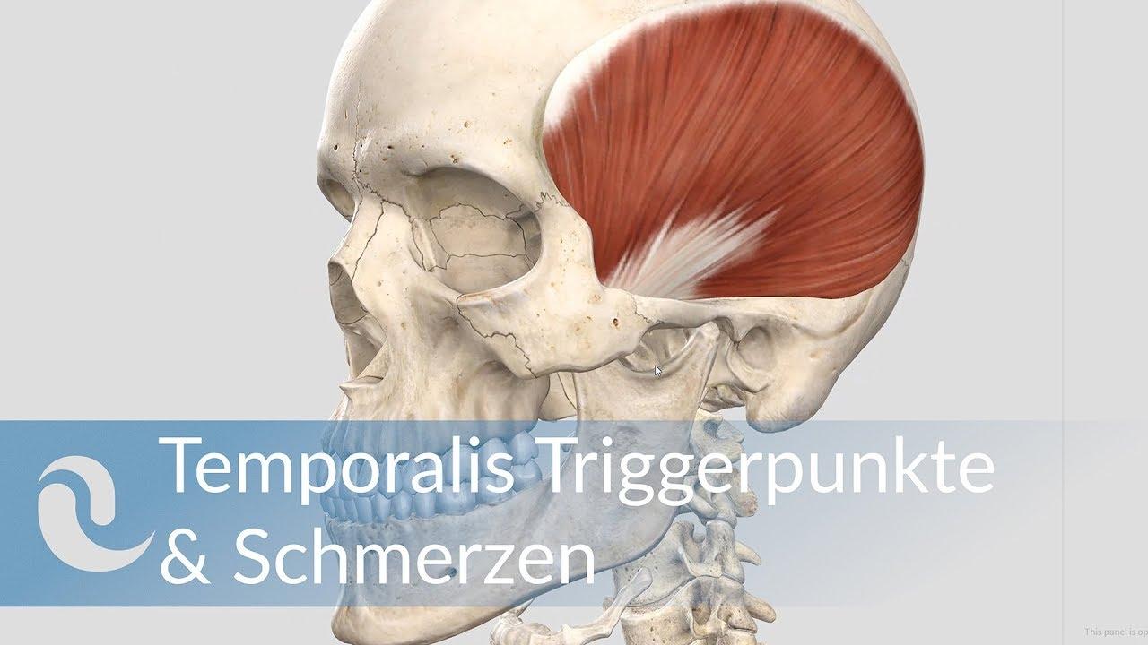 Temporalis Schmerzen, Triggerpunkte und deren Aktivierung ...