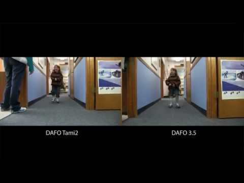 Case study | 4yr. old boy with excess plantarflexion & swing phase inconsistency | Comparing the DAFO 3.5 & DAFO Tami2