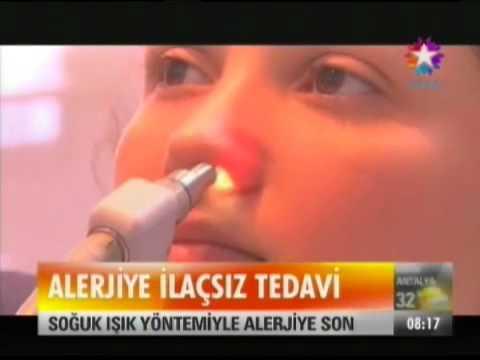 Dr.Süreyya Şeneldir Star Tv Alerjik Rinit Tedavisinde Yeni yöntem