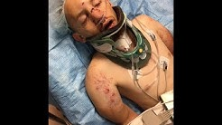horrific hit n run motorcycle accident in jax.fl