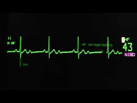 sinus rhythm, second degree AV block, 2:1 block on an ECG heart monitor