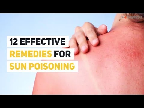 12 Effective Remedies For Sun Poisoning | Healthspectra