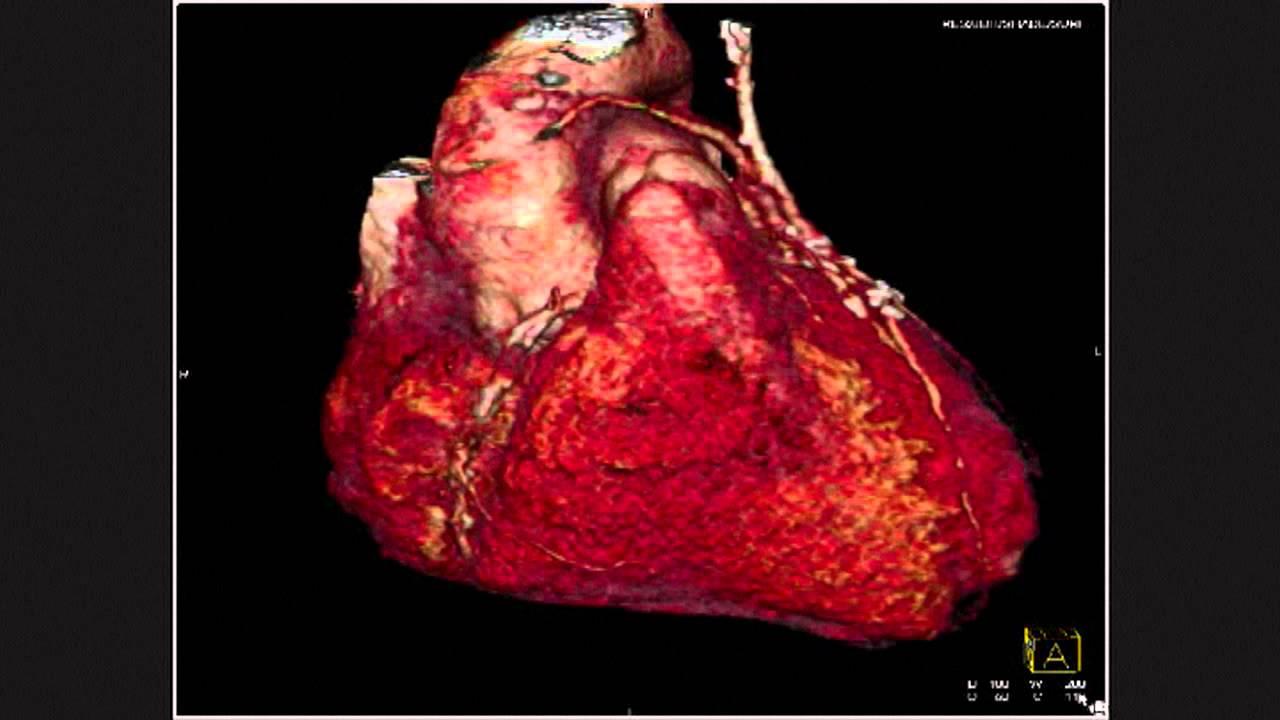 Coronary Artery Grafting With Bilateral Internal Mammary Arteries ...
