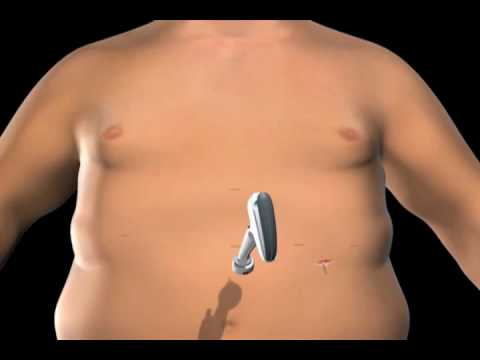 Gastric Banding at Duke Center for Metabolic and Weight Loss Surgery