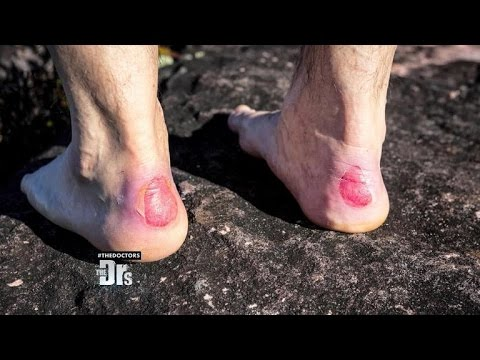 Drs. Rx: How to Avoid Getting Blisters on Your Feet!