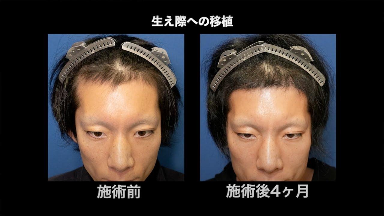 自毛植毛手術から4ヶ月後、生え際に1300株移植「困ったことがあっても、しっかりと対応して頂きとても良かったです」【 新宿・名古屋・大阪・福岡 】