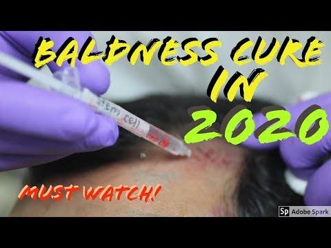 FINALLY A Hair Loss Cure in 2020! (Dr. Takashi Tsuji)