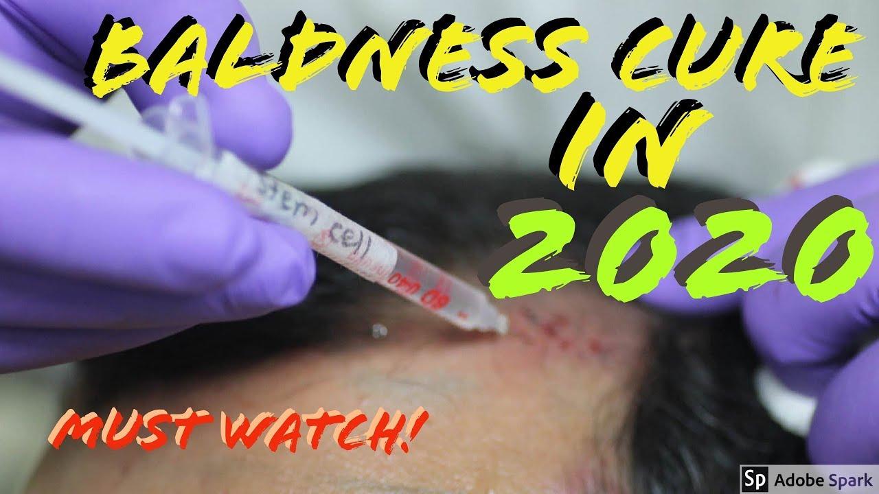FINALLY A Hair Loss Cure in 2020! (Dr  Takashi Tsuji)