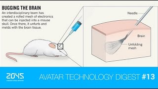 "#13 Avatar Technology Digest / ""Feeling"" artificial leg / Injectable brain implant etc."