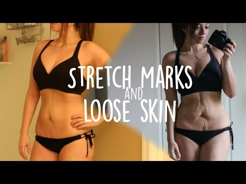 Bikini Progress | How I Feel About Stretch Marks