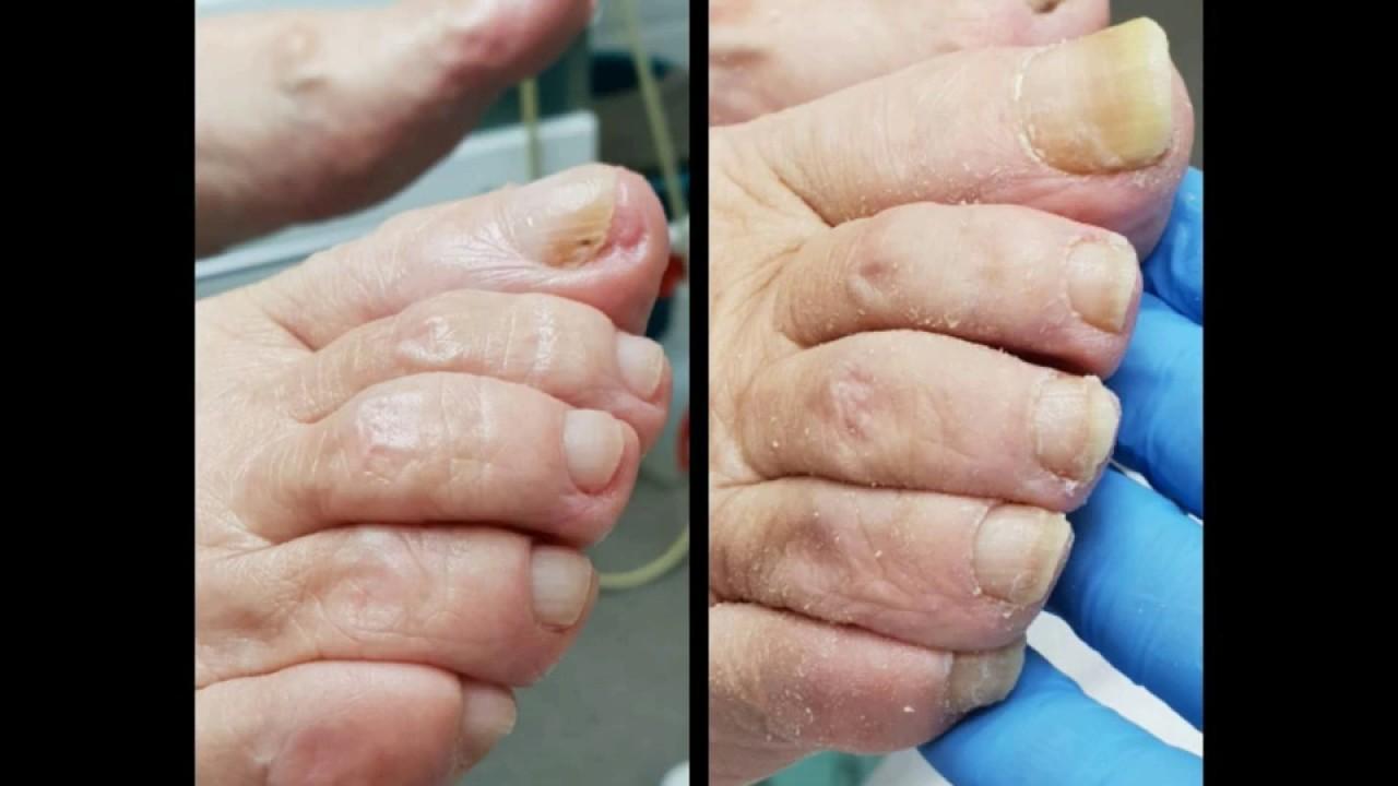 Стрижка ногтей на дому пожилым людям прокопьевск дом престарелых