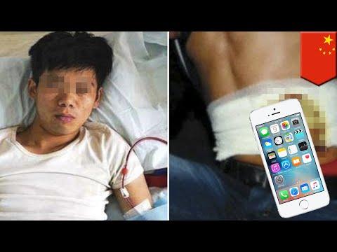 Pria jual ginjal untuk beli Iphone kini lumpuh - TomoNews