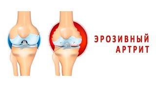Что такое эрозивный артрит и как он лечится?