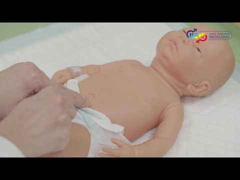 Массаж при пупочной грыже у новорожденного