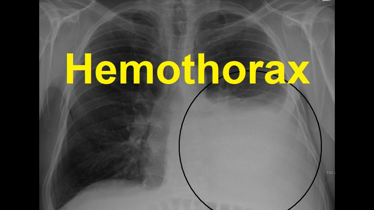 hemothorax vs pneumothorax
