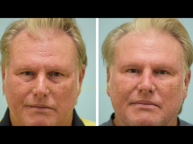 Dallas Fillers and Botox Testimonial