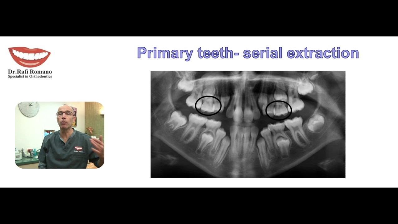 Dr Rafi Romano Serial Extraction Of Primary Teeth Youtube