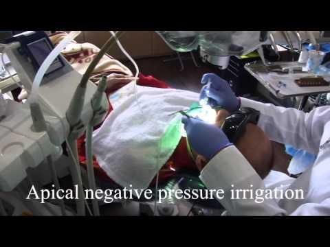 Apical negative pressure irrigation