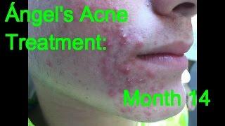 Ángel's Acne Treatment: Month 14