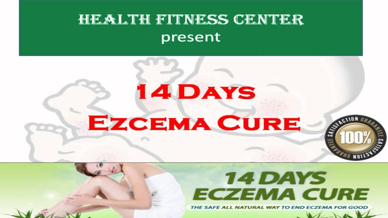 Permanently Cure Your Eczema Now!!! --- Just 14 Days Eczema