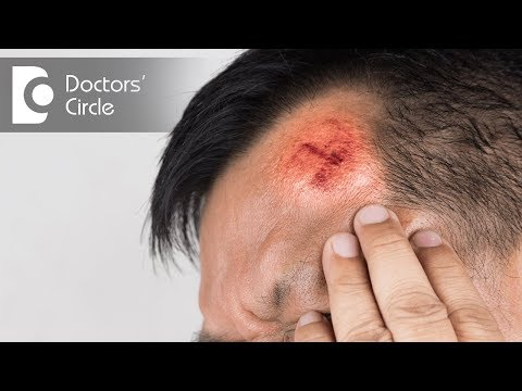 When does a Head Injury require medical attention? - Dr. Suresh H S