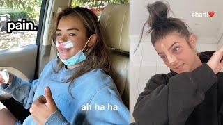 i got the same nose surgery as Charli D&#39Amelio