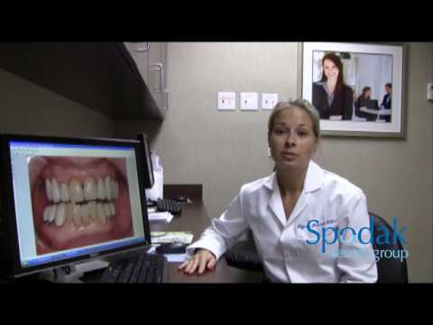 Delray Beach Dentist discusses options for missing teeth and broken teeth
