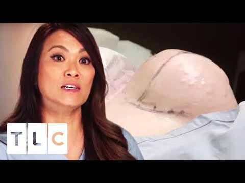 Dr. Pimple Popper | Giant Lipoma Looks Like Uncooked Chicken!