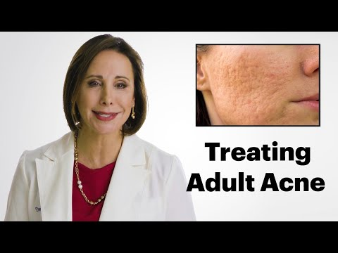 What is Adult Acne and How do I Treat It?